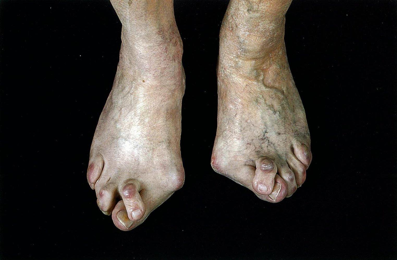 Indian Splayed Feet