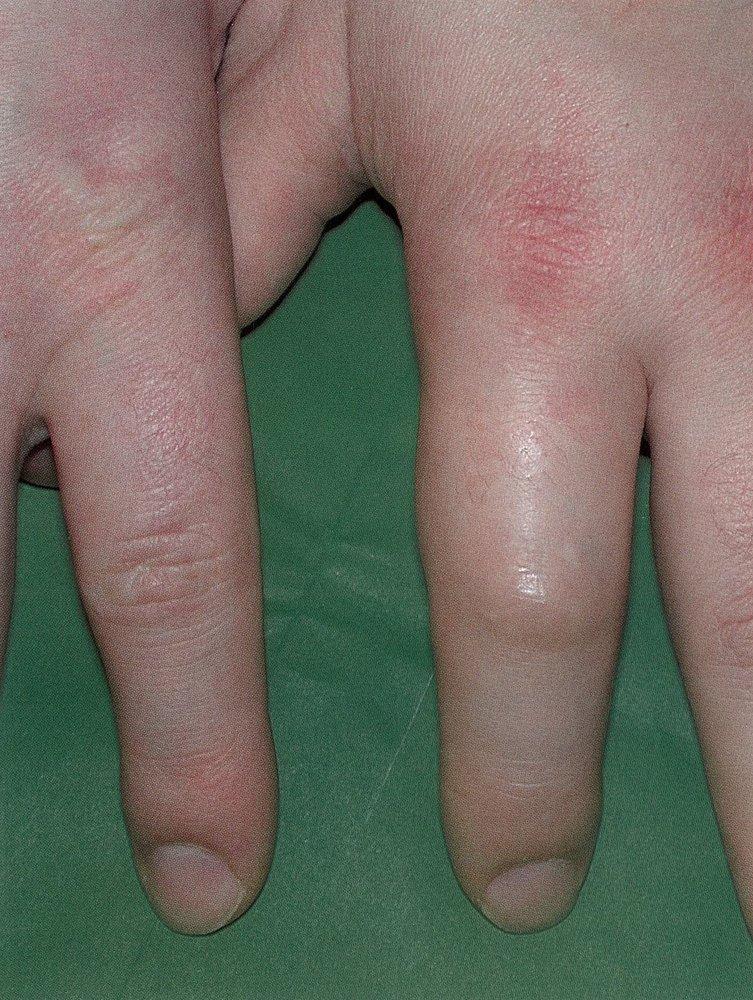 pikkelysömör oka piros pikkelyes foltok az alsó lábszáron