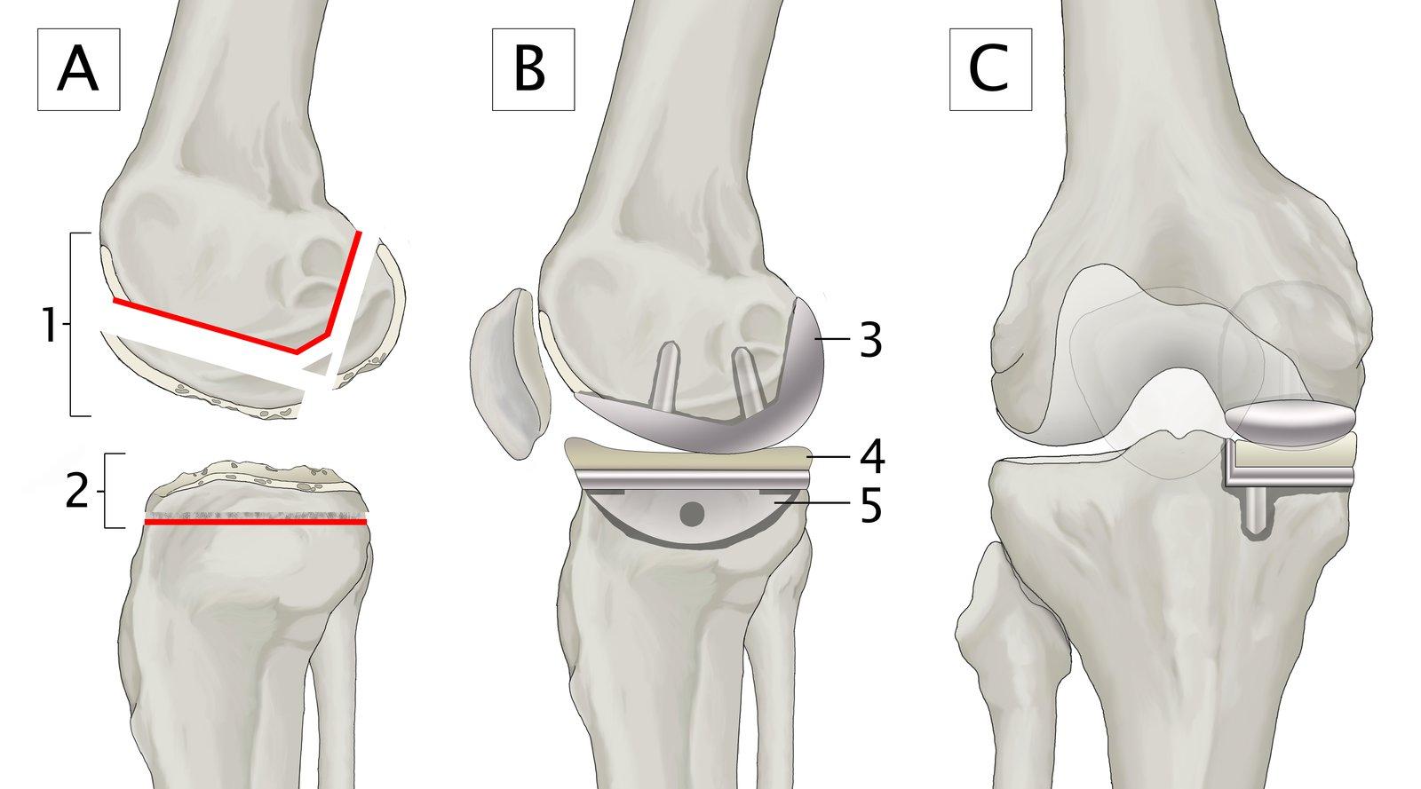 3. stádiumú térd osteoarthritis
