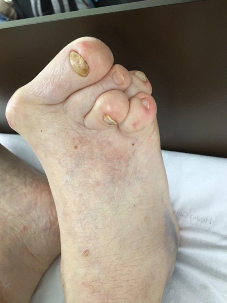 rheuma arthritis amboss