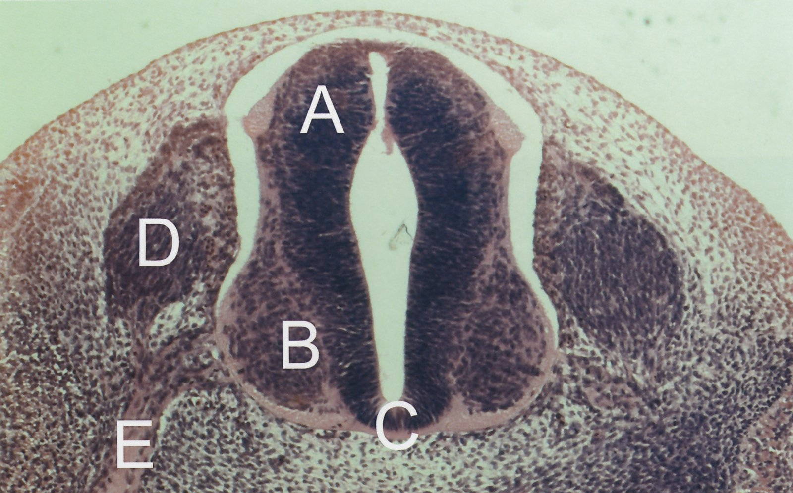 Spinal Cord Tracts And Reflexes Amboss The filum terminale is a small thin filament of connective tissue that extends inferiorly from the apex of the conus medullaris to the sacrum. spinal cord tracts and reflexes amboss