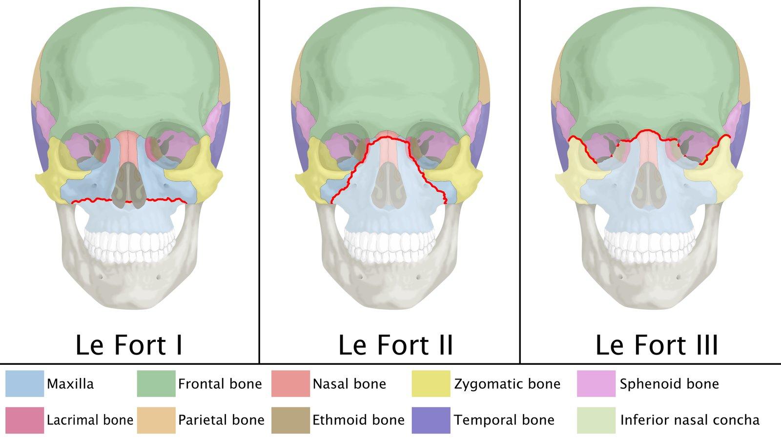 Skull fracture of basilar signs Battle's sign: