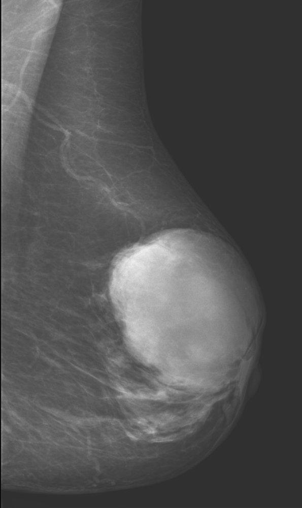 Endometrium rák amboss, Méhtestrák tünetei és kezelése