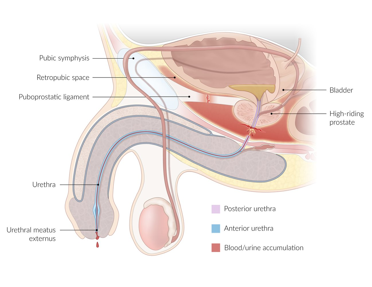 boggy prostate meaning