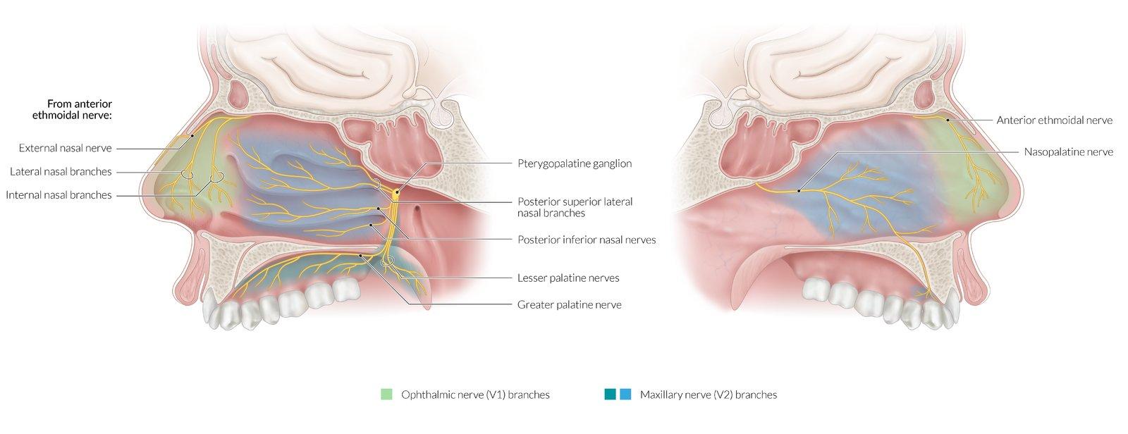 intraductal papilloma amboss