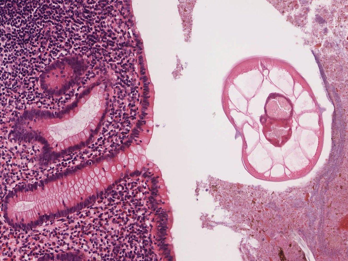 a helminthiasis terjedési tényezője gyermekek és felnőttek férgek gyógyszerei