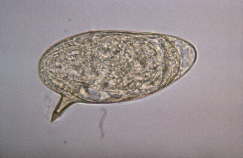 schistosomiasis granuloma képződés