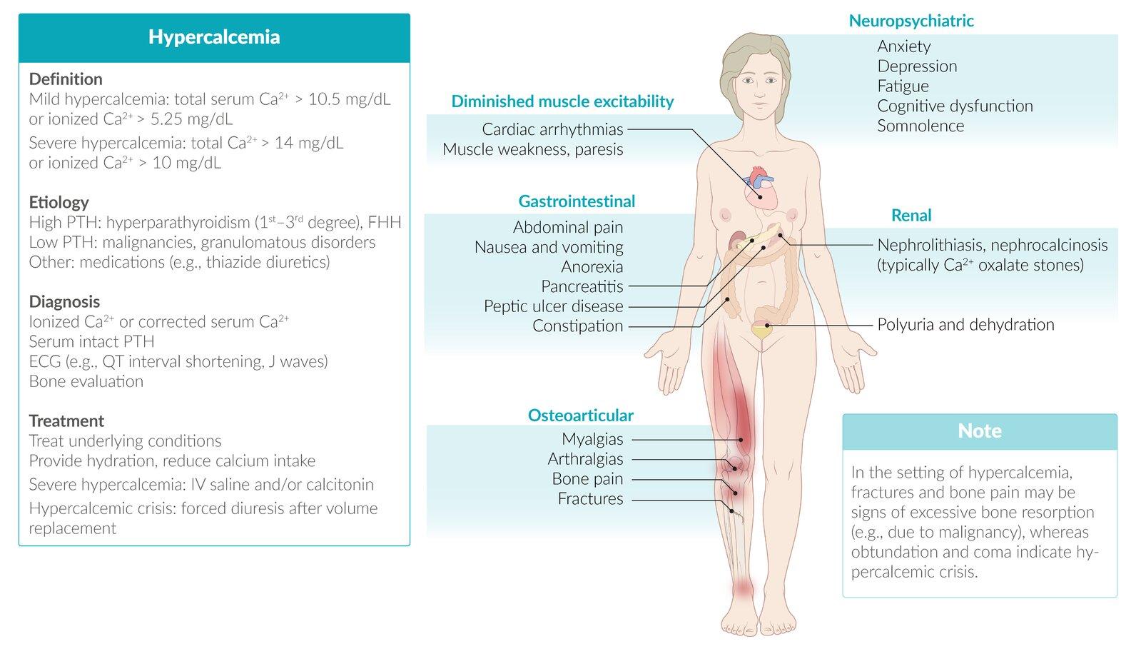 Hypercalcemia - AMBOSS