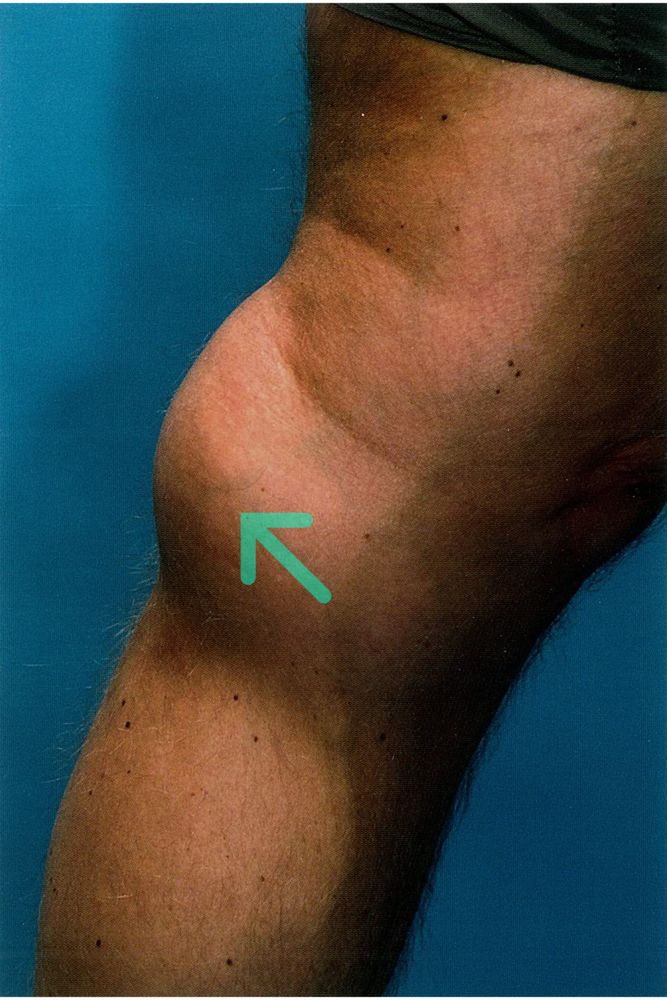 rheuma arthritis amboss)
