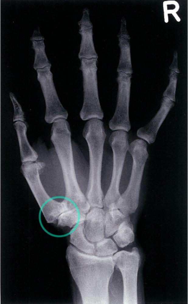 3. stádiumú térd osteoarthritis)