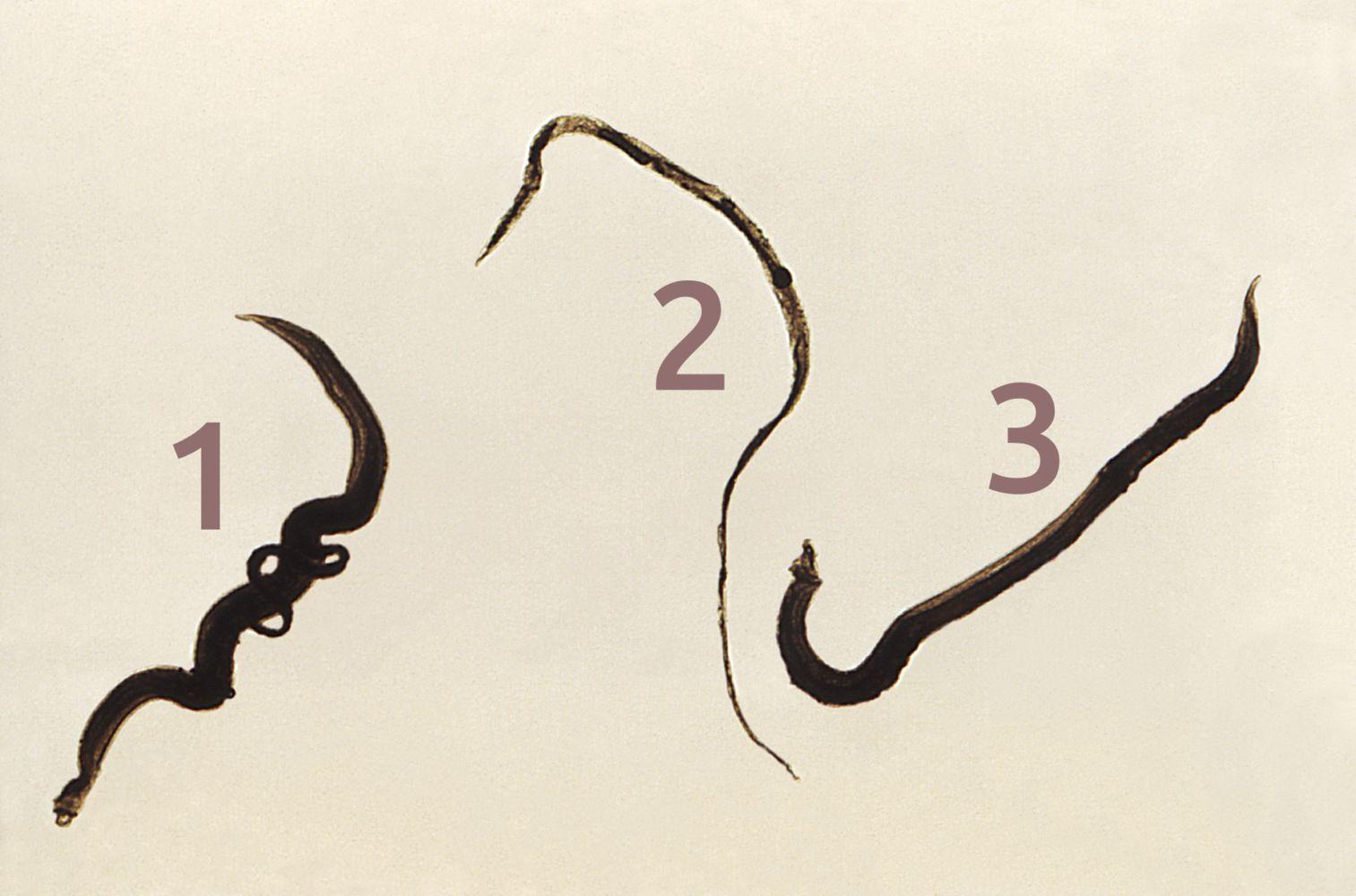 schistosomiasis amboss