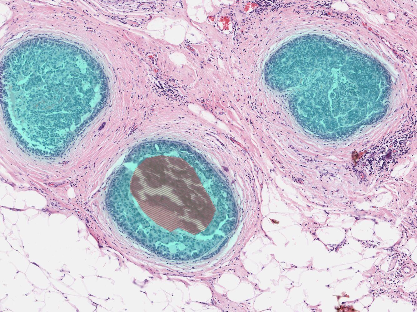 intraductal papilloma amboss)