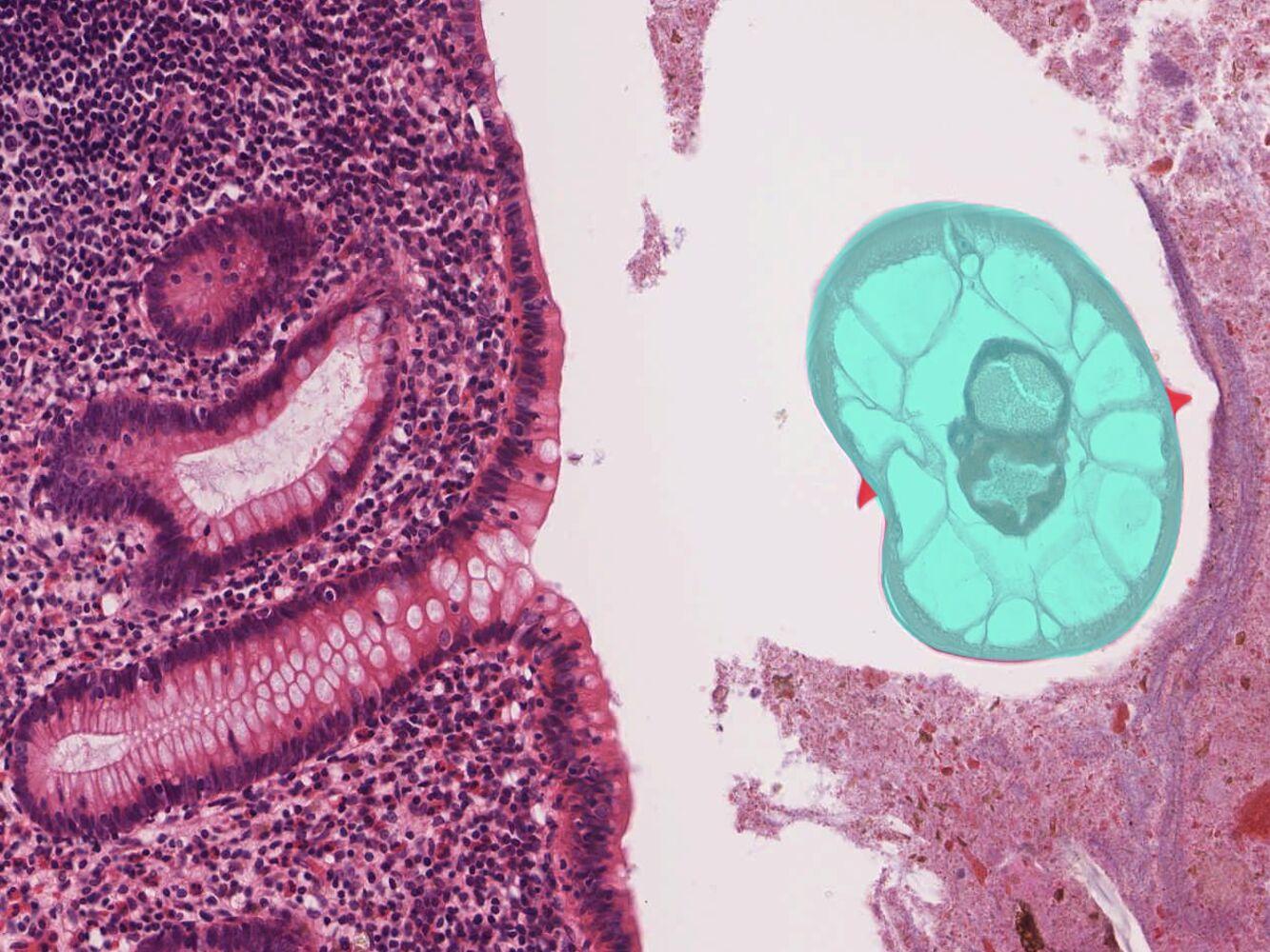 A pinworms vékony vagy vastag parazitizál